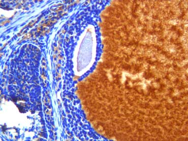 石蜡切片 免疫组化